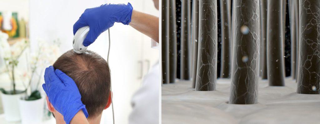 Haarwurzeluntersuchung beim Dermatologen