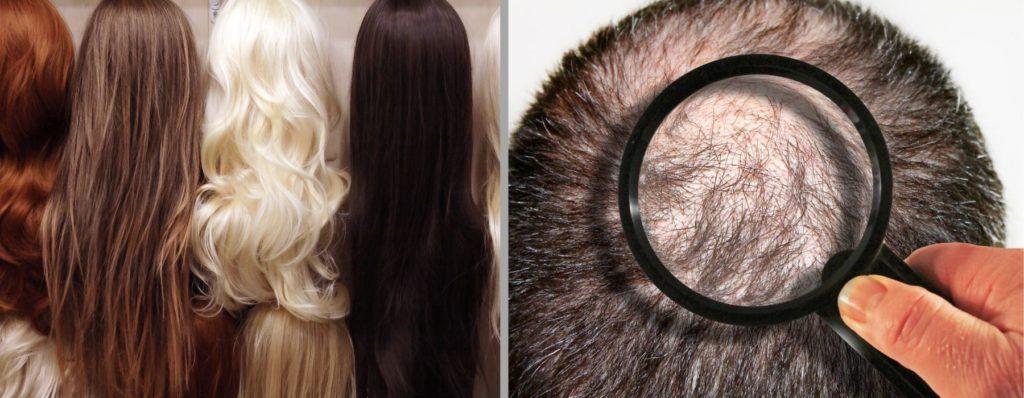 alternative Lösungen gegen Haarverlust